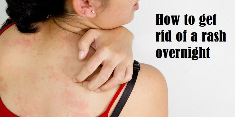 How to get rid of a rash overnight