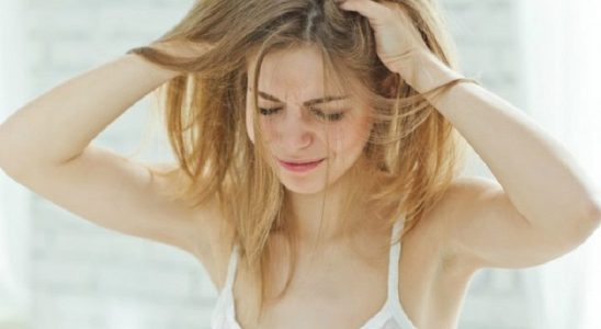 natural remedies for dandruff