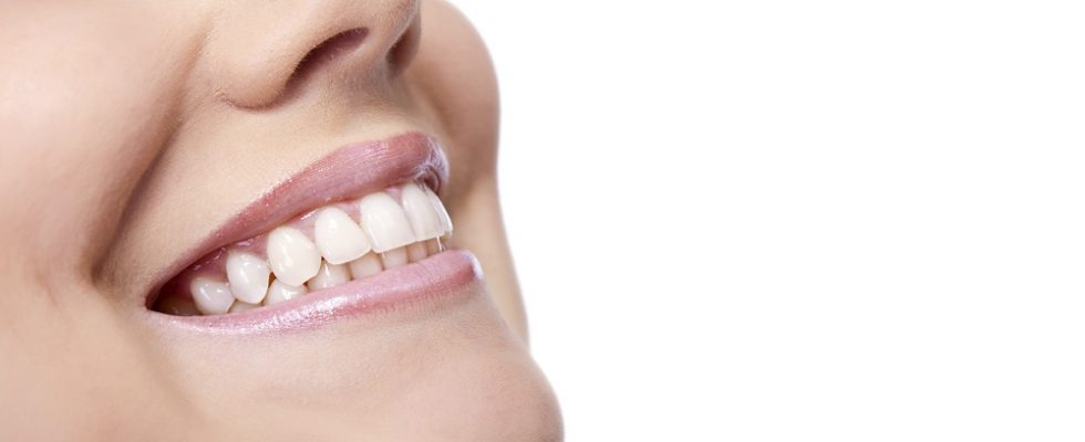 teeth whitening with activated charcoal