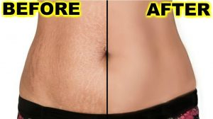 Remove stretch marks permanently